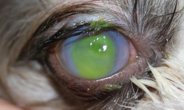 150408 corneal ulcer