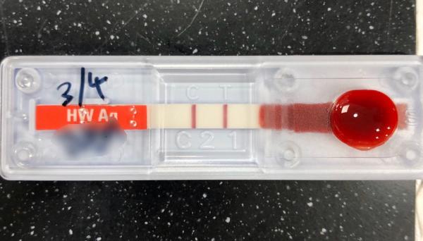'구름이'는 심장사상충 검사에서 항원 양성 판정을 받았다. 약국에서 구입한 심장사상충예방약을 꾸준히 먹였지만 예방효과는 없었던 셈이다.